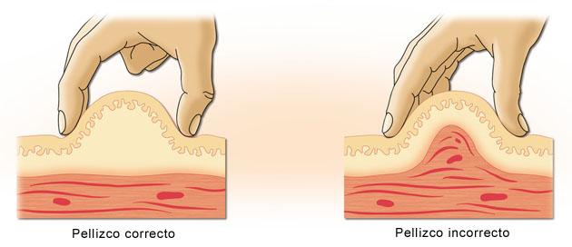 infección por punción en la pierna y diabetes